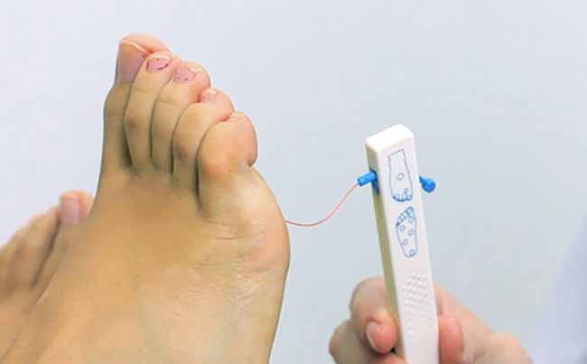 tratamiento pie diabetico