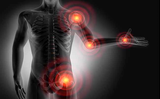 puntos gatillo fibromialgia