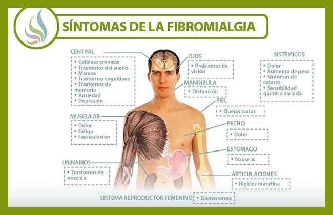infografia sintomas fibromialgia